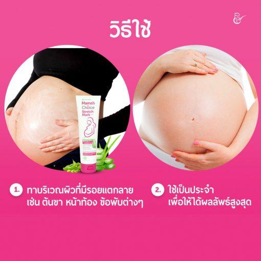 Kem trị rạn da cho mẹ bầu Mama's Choice Stretch Mark Cream 100g